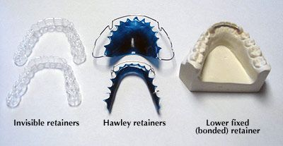 Orthodontic-retainer-types