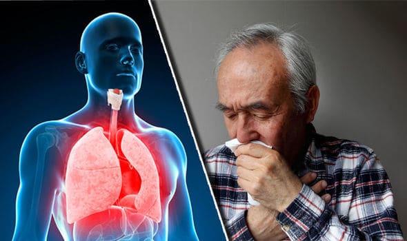 bronchitis-symptoms