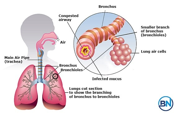 is-bronchitis-contagious